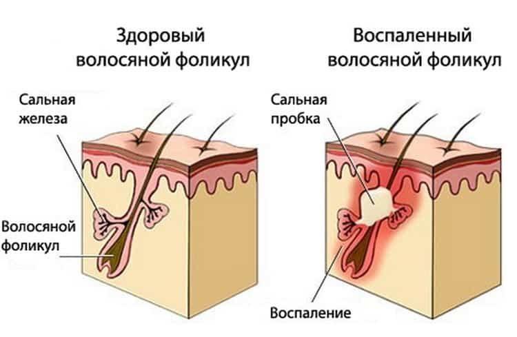 Себорея кожи головы: причины, симптомы и лечение народными средствами