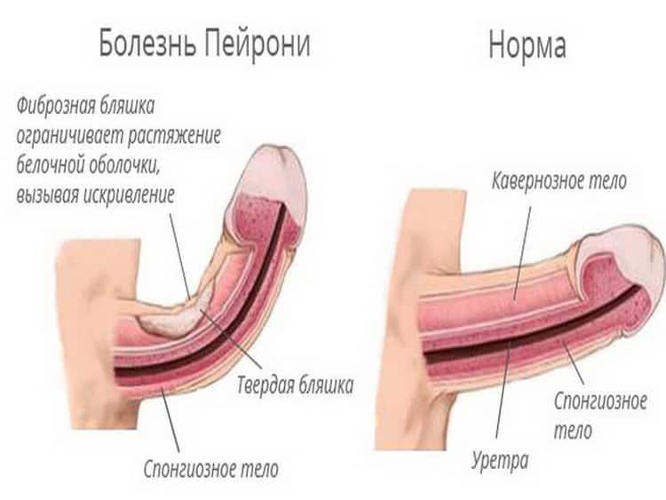 болезнь пейрони: диагностика и лечение